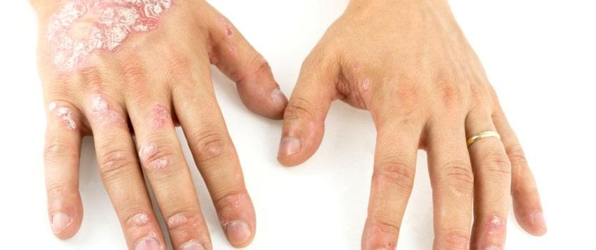 Psoriasis op de handen