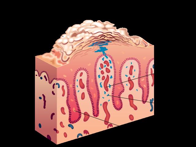 Veranderingen in de huid bij psoriasis