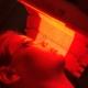 Fotodynamische therapie bij acne