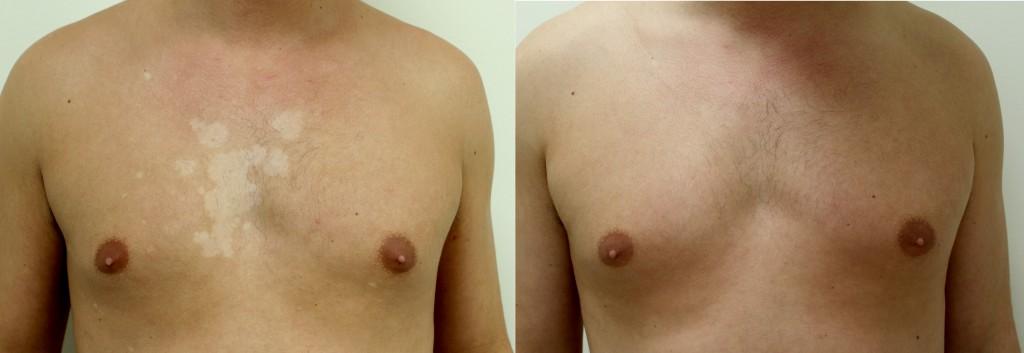 Resultaat behandeling vitiligo lichttherapie