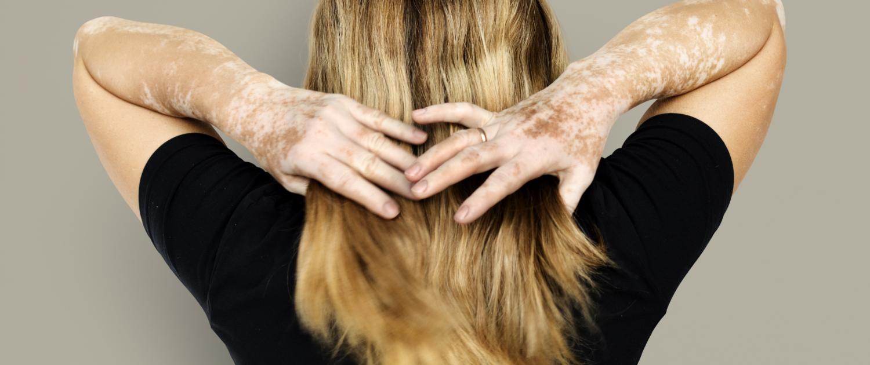 Vrouw met vitiligo