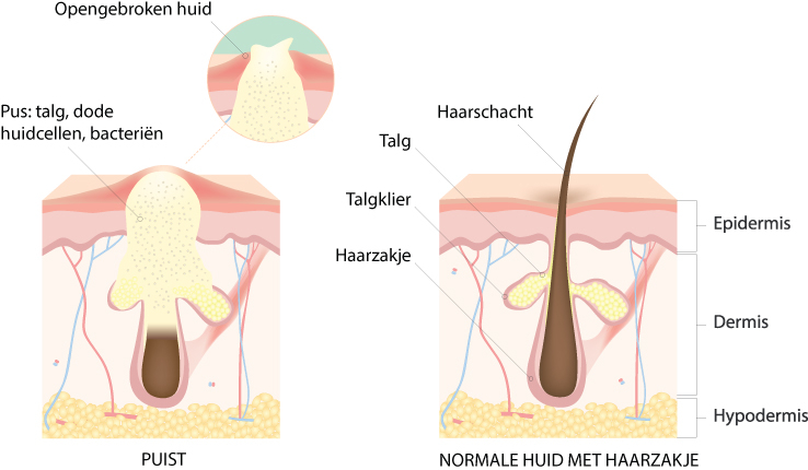 Normale huid en huid met acne