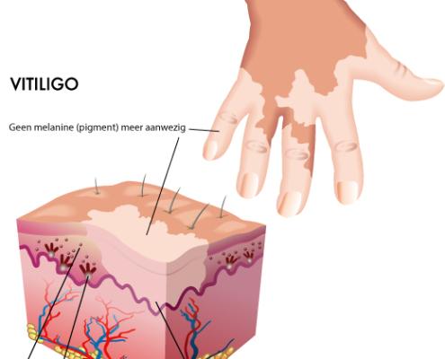 Vitiligo illustratie