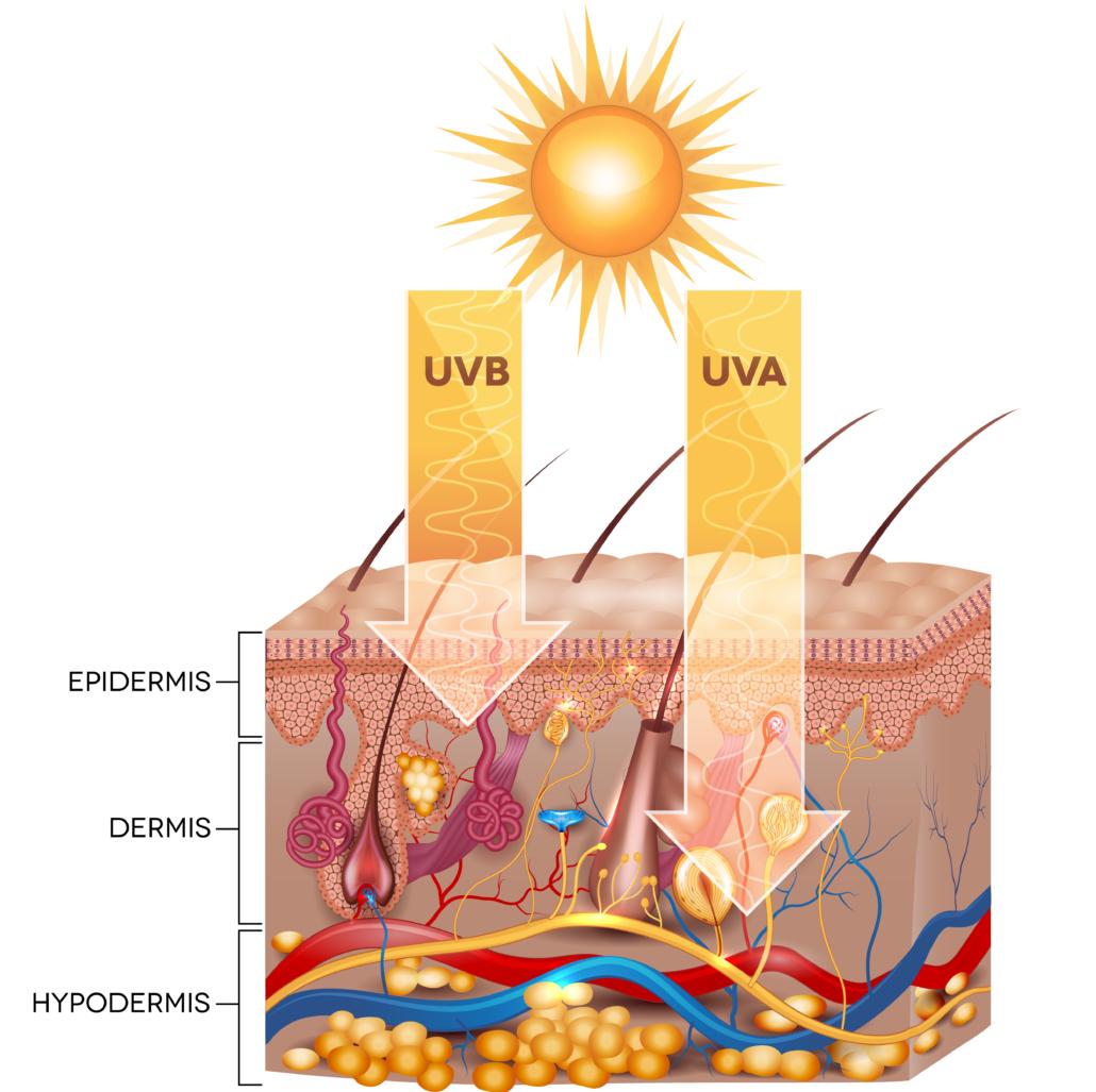 Huidkanker kan veroorzaakt worden door UV straling