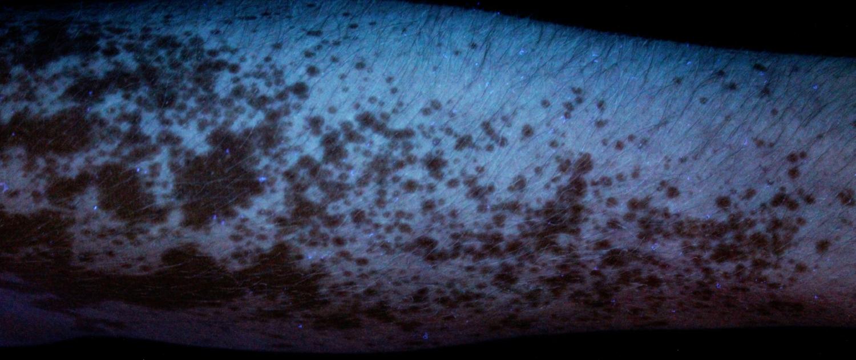 Vitiligo woodslamp foto